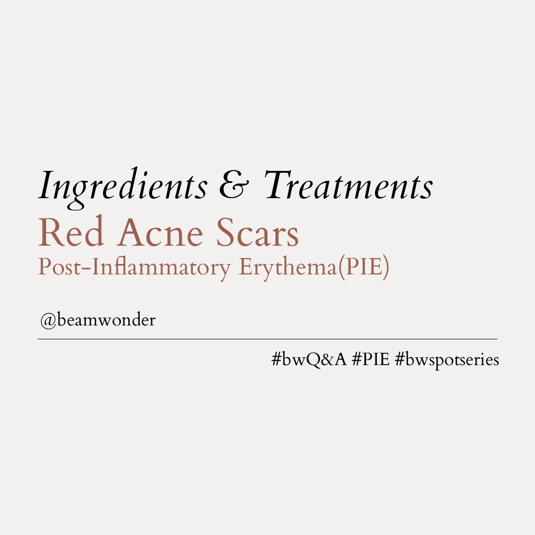 Ingredients & Treatments for Red Acne Scars (PIE)