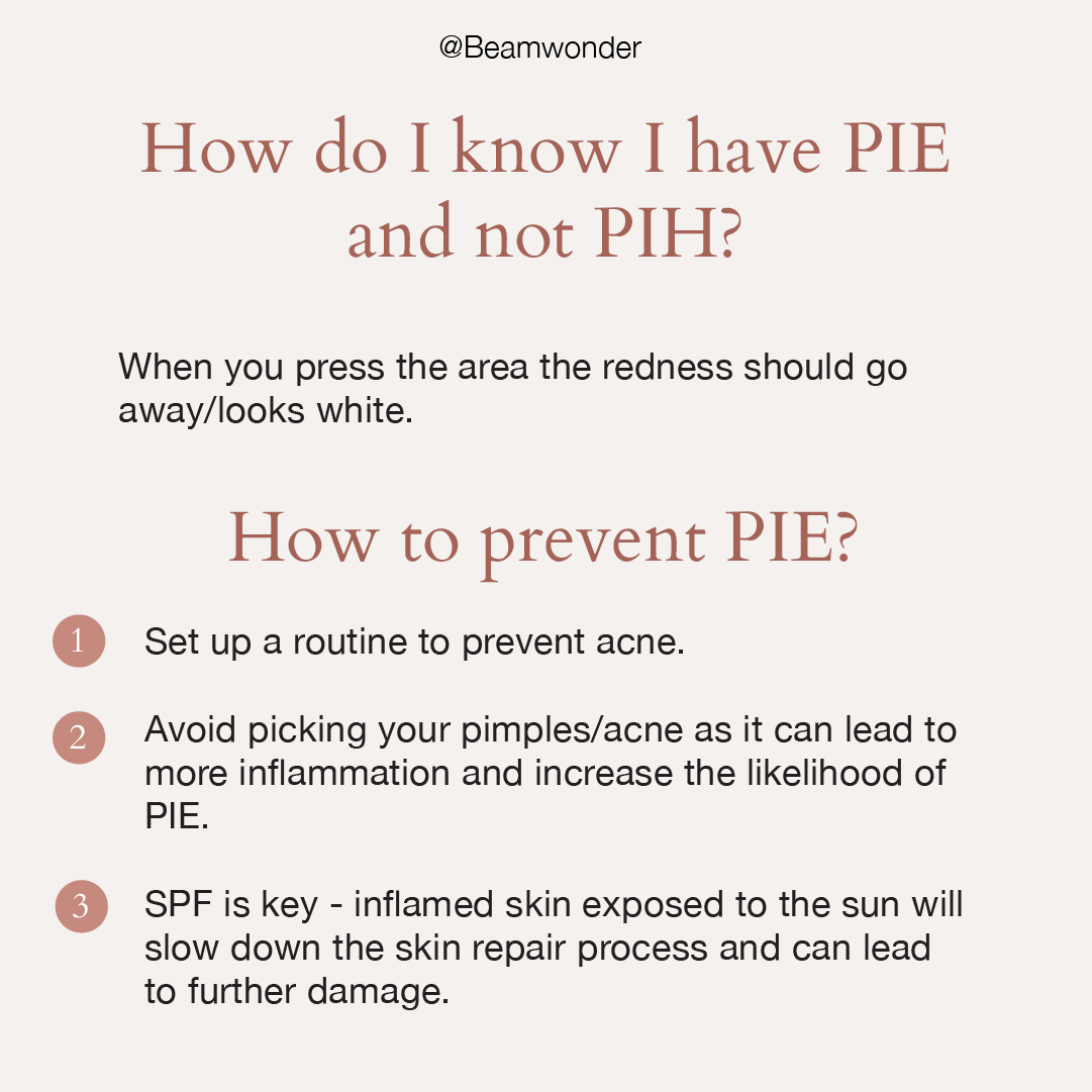 How To Treat Red Acne Scars Pie Beamwonder